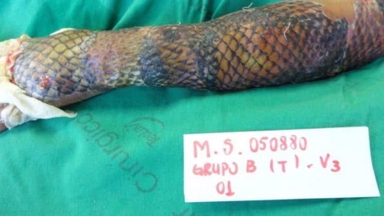 Здоровье и красота: Бразильские врачи лечат ожоги при помощи кожи рыб