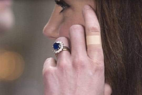 Общество: Кейт Миддлтон привлекла внимание «вечным» пластырем на пальцах