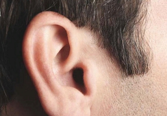 Без рубрики: В Англии у мужчины извлечена самая большая в мире ушная пробка