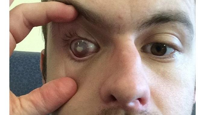 Происшествия: Британец принимал душ в линзах, и в глазу поселился жуткий паразит