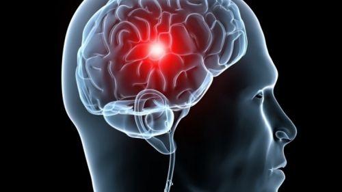 Общество: Медики рассказали, как в разы снизить риск инсульта - Cursorinfo: главные новости Израиля