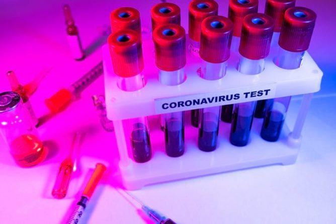 Общество: В Британии создали тест, который рекордно быстро определяет COVID-19 у человека - Cursorinfo: главные новости Израиля