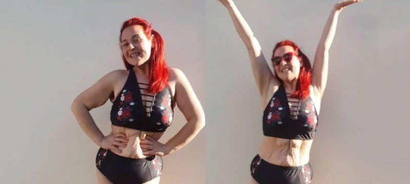 Общество: Британка гордится обвисшей после похудения кожей
