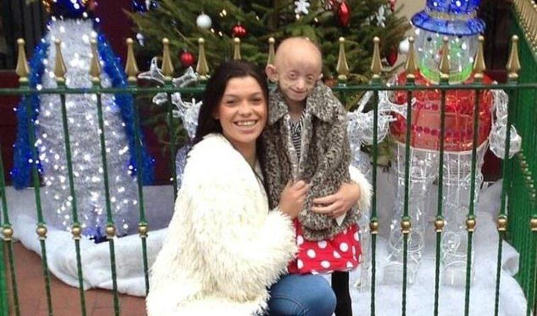 Общество: 18-летняя девушка с «болезнью Бенджамина Баттона» умерла в Англии