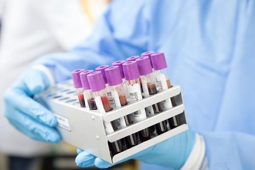 Общество: За сутки в Великобритании выявили более 33 тысяч случаев заражения COVID-19
