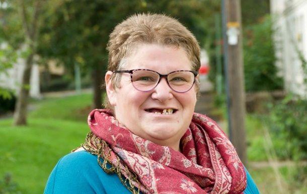 Общество: Не нашла бесплатного стоматолога: британка вырвала себе 11 зубов